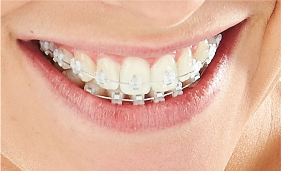 Ceramic Self-Ligation Braces